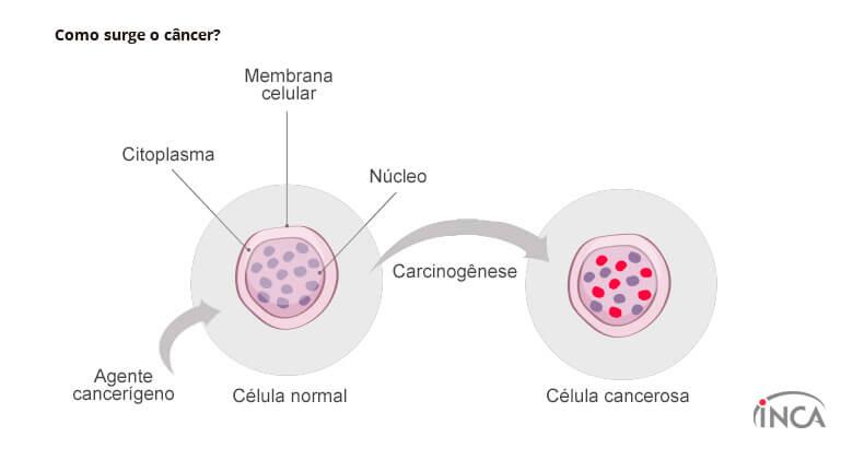 como surge o cancer img1 0 - Cientistas americanos descobrem método para impedir que o câncer se espalhe